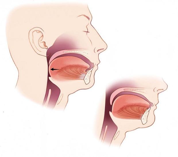 Sleep Surgery OSA Airway