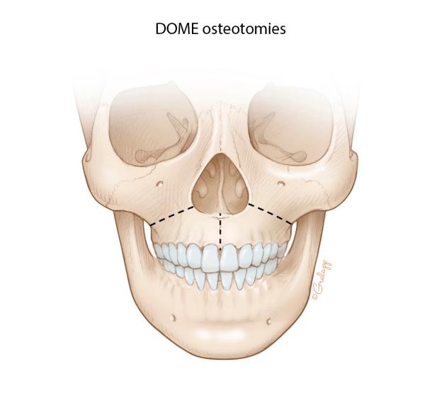 Expander Osteotomies