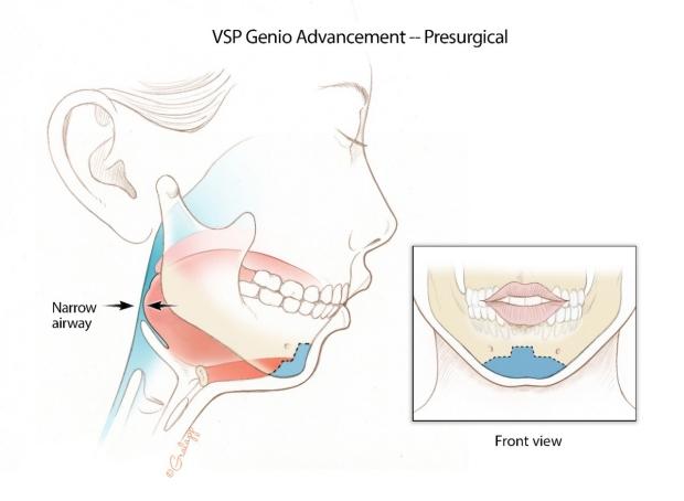 Genioglossus Advance Preop