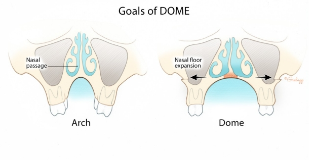 Goals of DOME