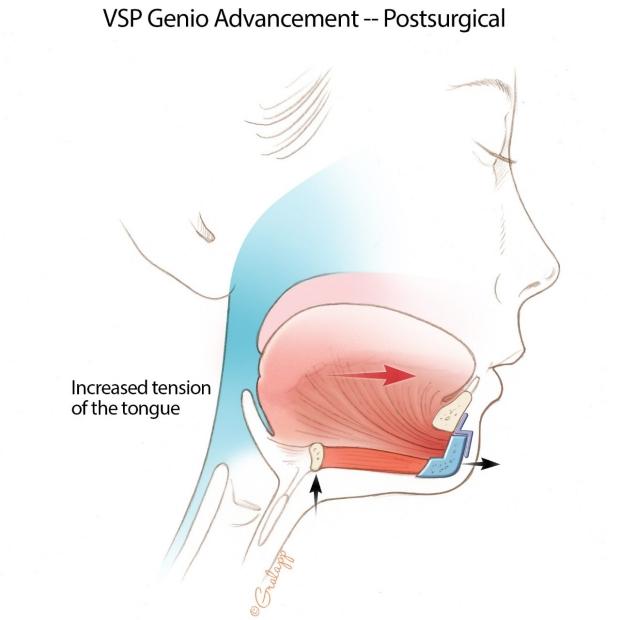 Genioglossus Advancement