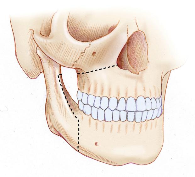 bony-incision-sleep-surgery-StanfordOHNS-large
