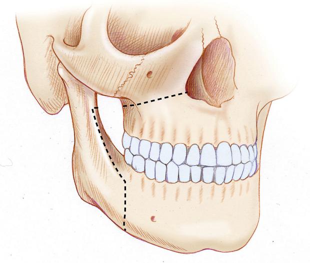 MMA bone incisions