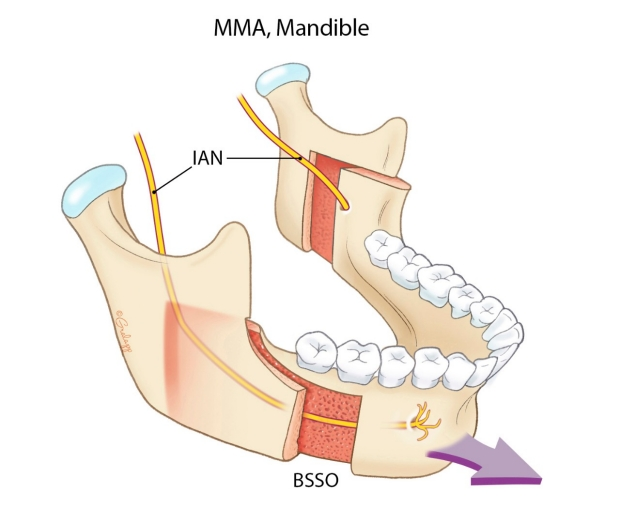 Bilateral Sagittal Split Osteotomies