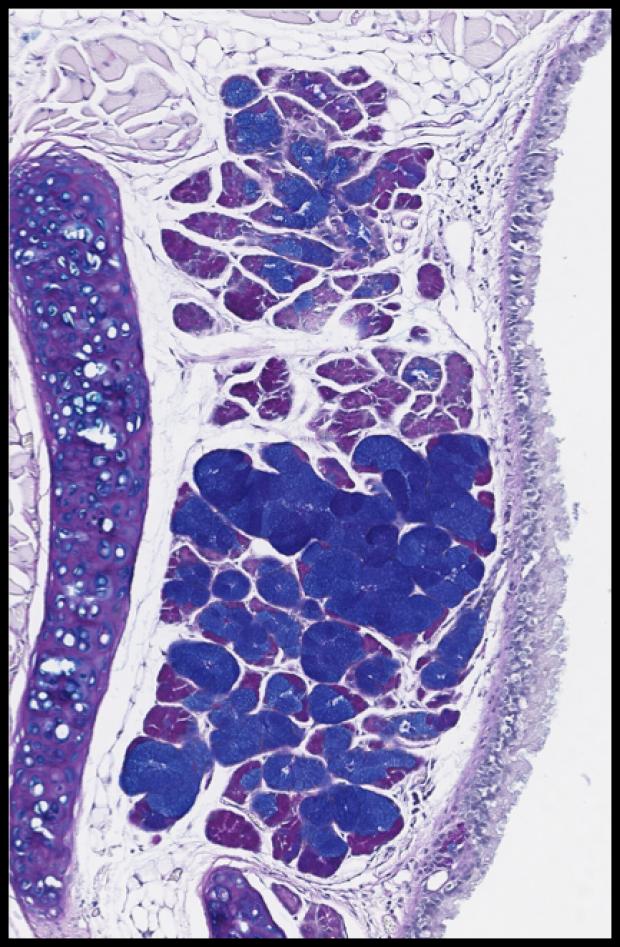 Laryngeal Mucus Gland