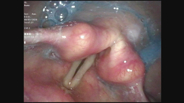 Image from endoscopic evaluation of swallowing