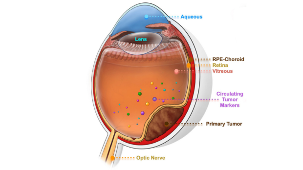 Providing hope for eye cancer patients