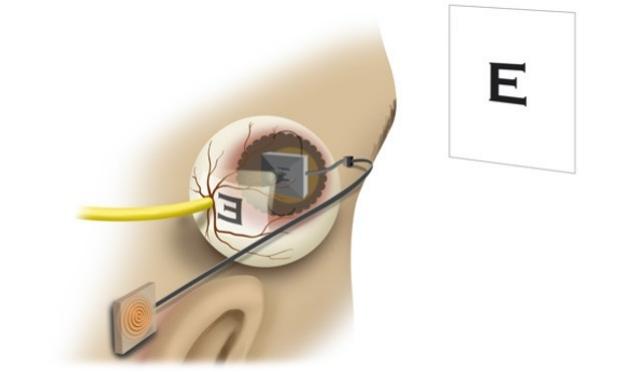 Dr. Yu cornea art drawing