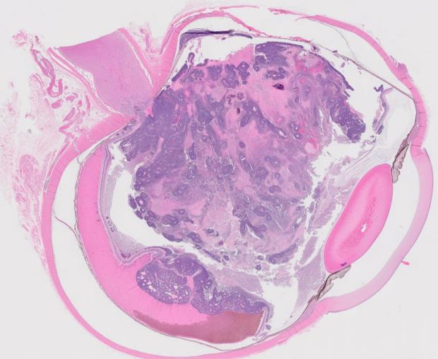 retinoblastoma lab image