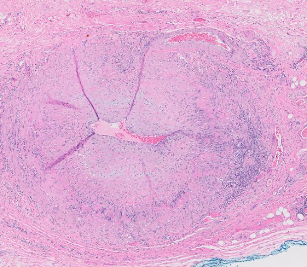 arteritis cell photo