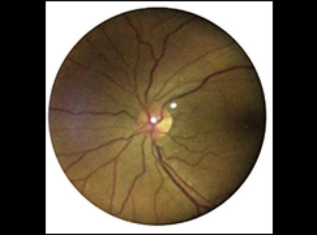 Diabetic Retinopathy Eyeball