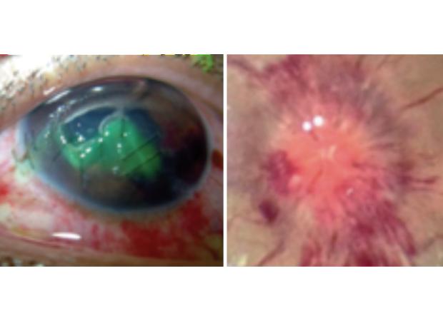 injured eyes