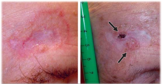 smoothened resistance in basal cell carcinoma