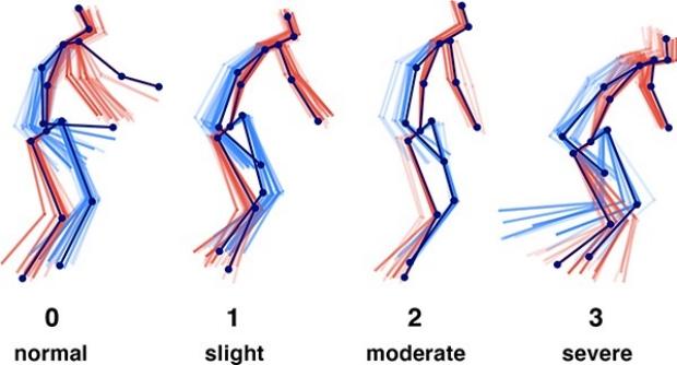 Vision-based Estimation of MDS-UPDRS Gait Scores for Assessing Parkinson's Disease Motor Severity