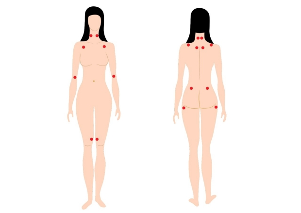 fibromyalgia-model