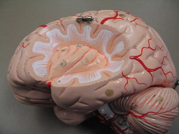 Brain Model 2