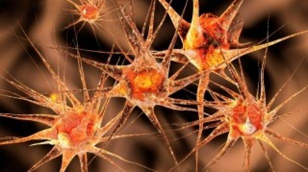 orange-neurons