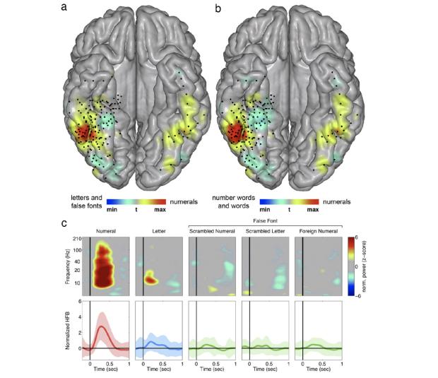 posterior inferior temporal gyrus (pITG)