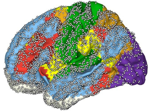 Brain with resting state networks