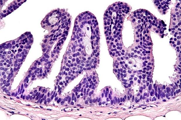 Breast pathology sample