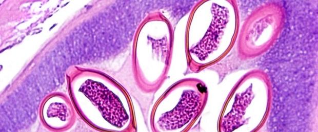Pathology sample
