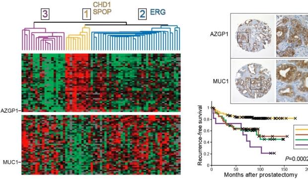 Prostate cancer genomics