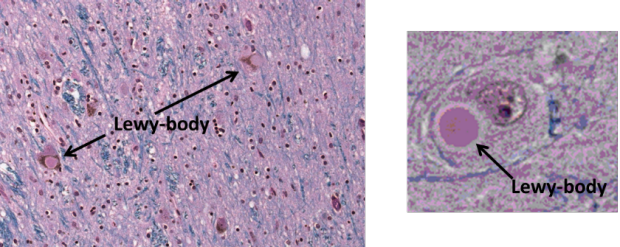 Lewy body dementia (LBD) is a disease associated with abnormal deposits of a protein called alpha-synuclein in the brain.