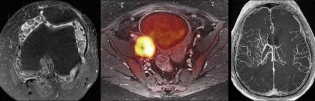 Bones, Body and Brain MRI
