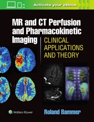 Roland bammer phd lead author mr and ct perfusion and roland bammer phd lead author mr and ct perfusion and pharmacokinetic imaging clinical applications and theoretical principles radiology stanford fandeluxe Choice Image