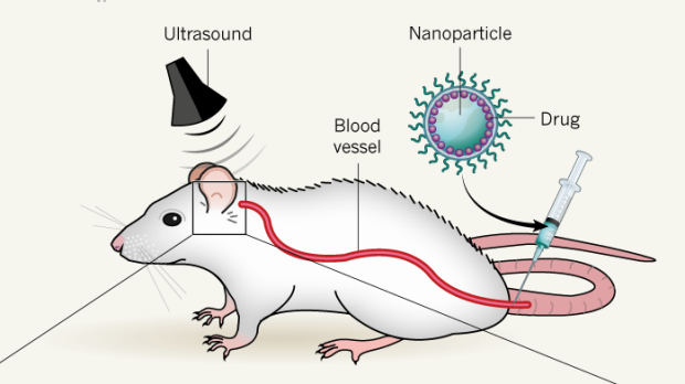 Research on Noninvasive Neuromodulation with Nanoparticles using FUS Highlighted in Nature