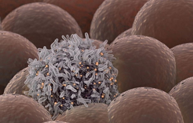 Same Mutations Underpin Spread of Cancer in Individuals