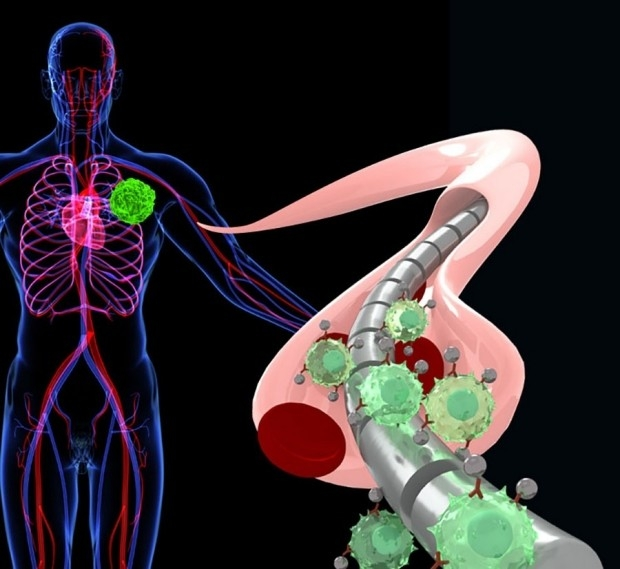 Illustration of magnetic wire that attracts labeled circulating tumor cells