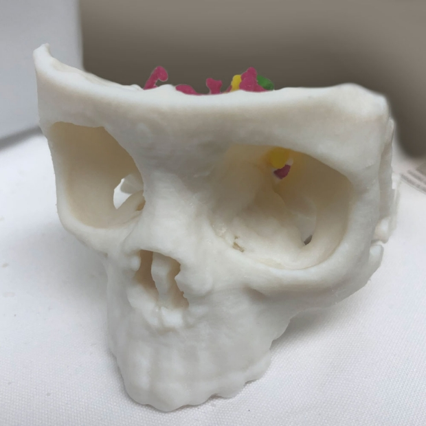 3D Printed Skull from the 3DQ Lab Help Doctors Visualize Difficult Surgery