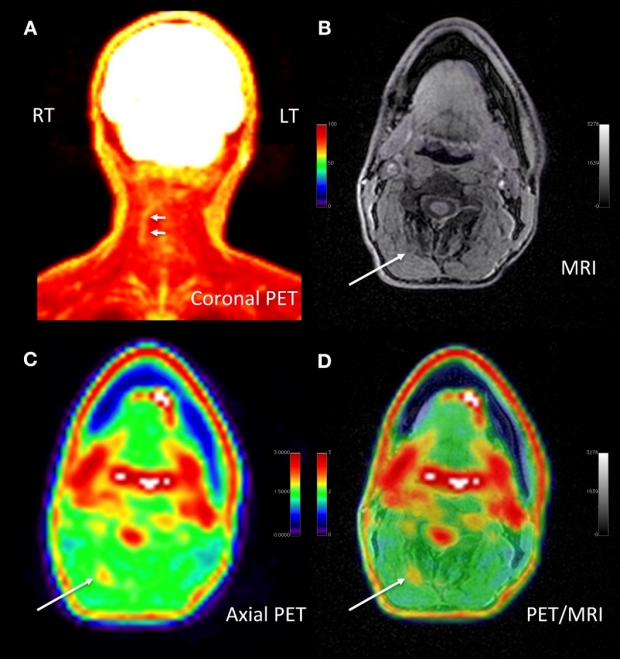 New PET/MRI Research from the Pain Imaging Lab Identifies Chronic Pain