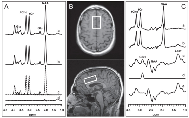 Effects of acute N-acetylcysteine challenge on cortical glutathione and glutamate in schizophrenia: A pilot in vivo proton magnetic resonance spectroscopy study