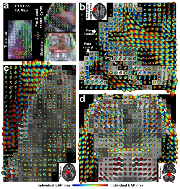 Generalized diffusion spectrum magnetic resonance imaging (GDSI) for model-free reconstruction of the ensemble average propagator