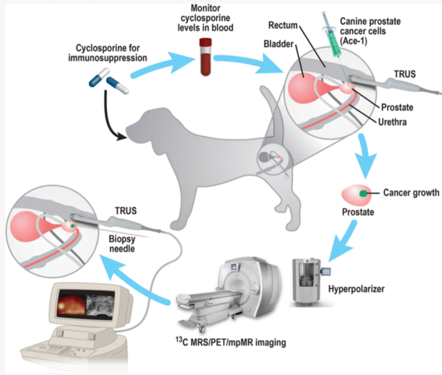 Multimodality  Hyperpolarized C-13 MRS/PET/Multiparametric MR Imaging for Detection and Image-Guided Biopsy of Prostate Cancer
