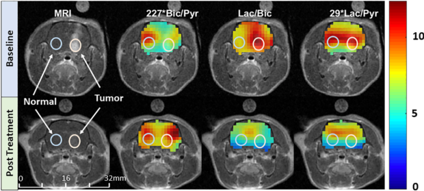Reversed metabolic reprogramming as a measure of cancer treatment efficacy in rat C6 glioma model