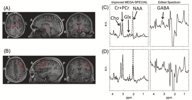 Thalamic and prefrontal GABA concentrations but not GABAA receptor densities are altered in high-functioning adults with autism spectrum disorder