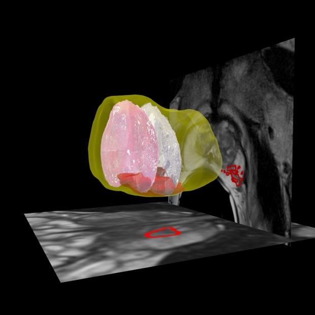 Radiology Pathology Fusion