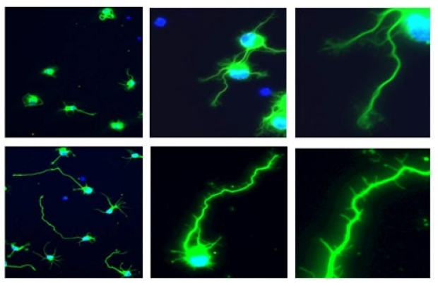 Neurite Outgrowth Assay in PCN and PHN-1