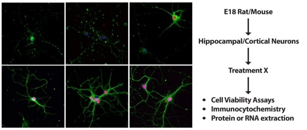 Primary Cortical Neurons (PCN) / Primary Hippocampal CellsNeurons (PHN) Cell Culture