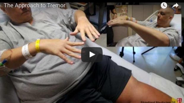 Stanford 25: Approach to Tremor