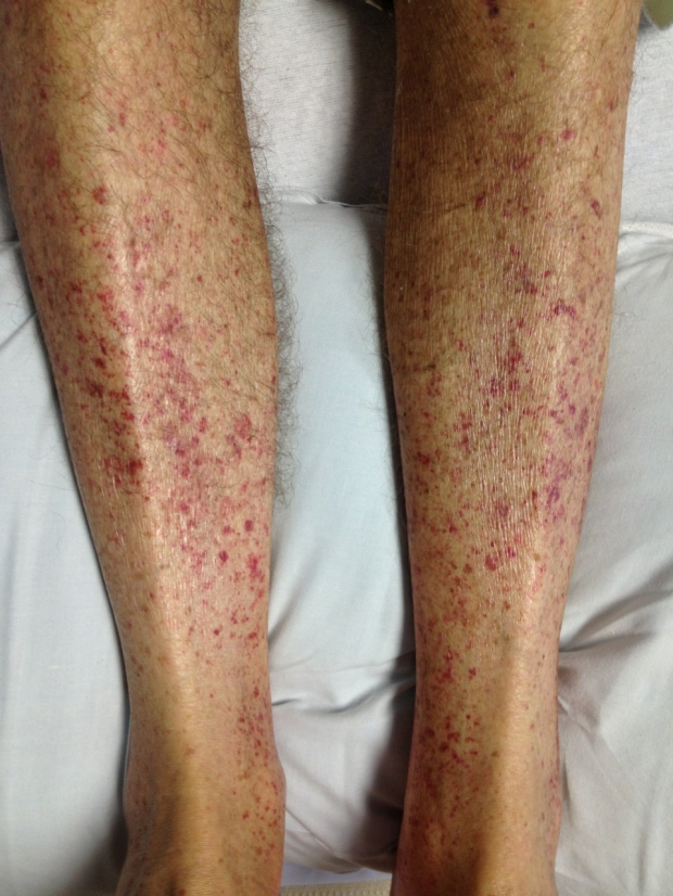 Example of Petechiae (Petechia) showing small red spots on legs