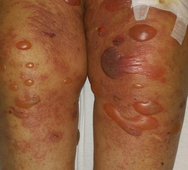 Example of bullous pemphigoid large fluid-filled blisters on legs