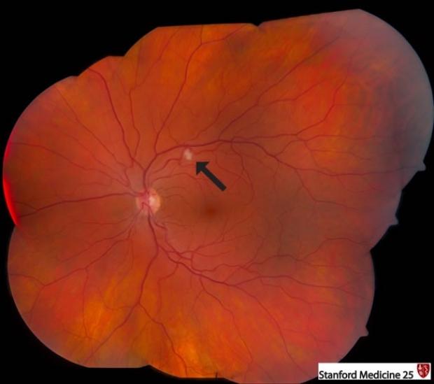 cotton wool spots of retina