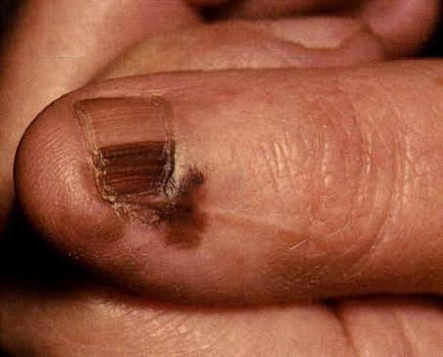 acral lentinginous melanoma