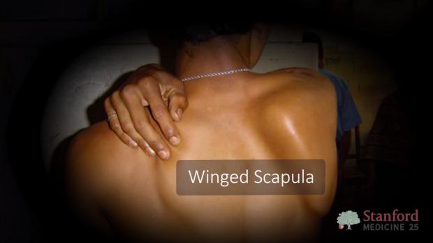 Winging scapula.