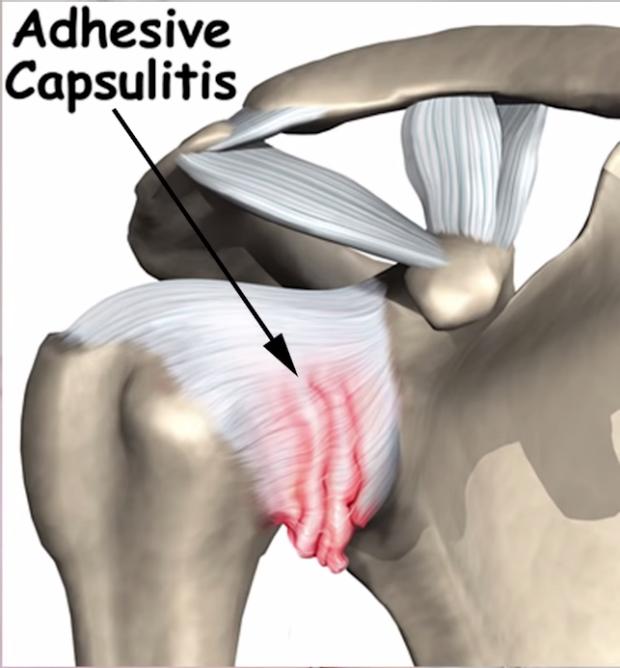 Adhesive capsulitis.