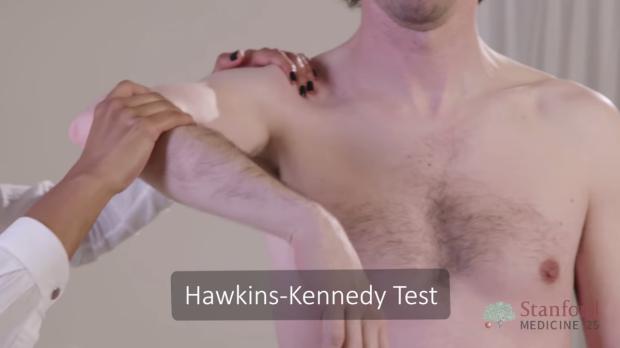 Hawkins-Kennedy Test